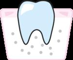 parodontoza1