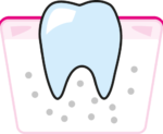 parodontoza2