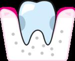 parodontoza3